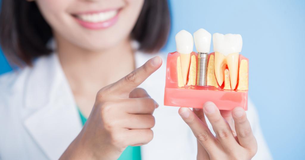הסבר על שיניים