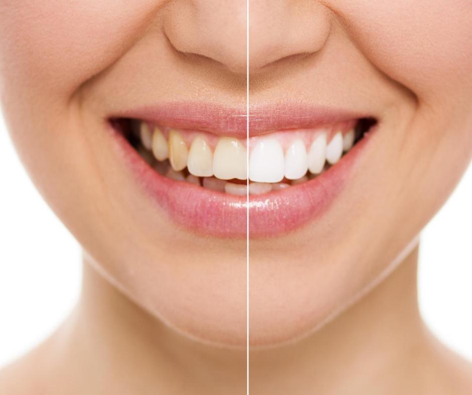 השתלות שיניים למחוסרי עצם
