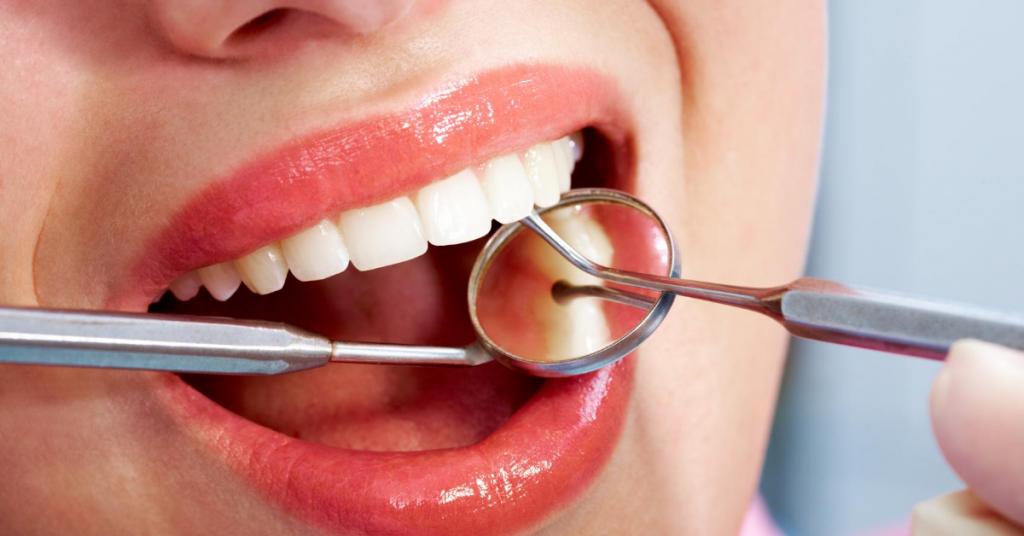 השתלות שיניים ברחובות